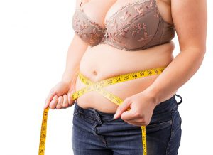 Plus Size Tummy Tuck: What You Should Know